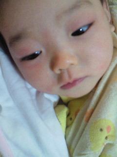目 周り 新生児 赤い の
